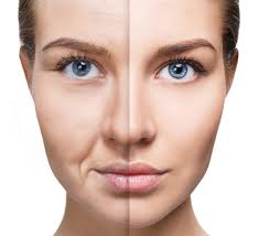 Microneedling and Fibroblast - Mesotherapy injections and other treatments are available at best prizes and professional work. Bitterne Southampton, Portchester, Chichester
